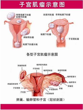 腹腔镜做子宫肌瘤多少钱