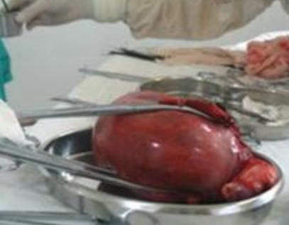 子宫肌瘤可怀孕吗