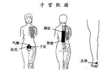 子宫肌瘤患者的护理诊断