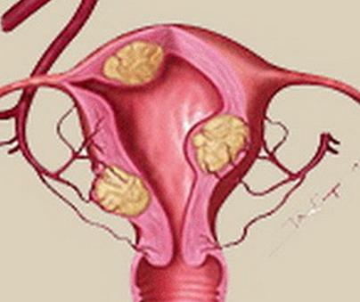 带子宫肌瘤怀孕的危害