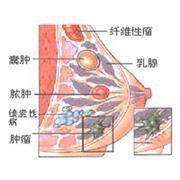 怎样治疗乳腺增生