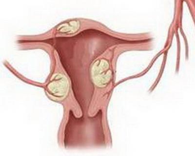 子宫肌瘤可以去健身锻炼吗