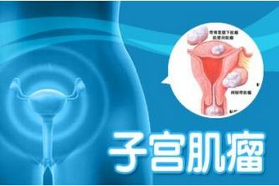 子宫肌瘤镜检的方法