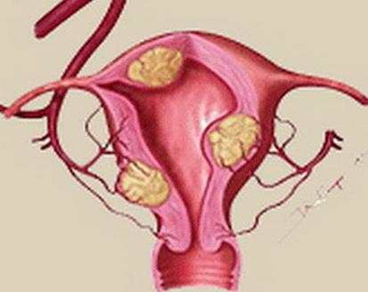 子宫肌瘤介入法需要多少钱