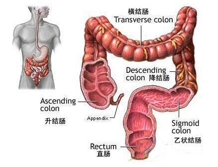 大肠癌临床护理路径