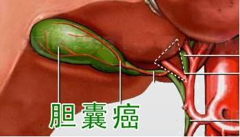胆囊癌的早期症状