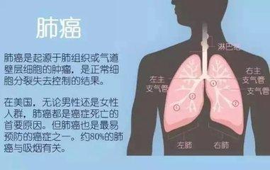 患上了肺癌早期能治愈吗
