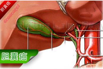 怎么预防胆囊癌传染