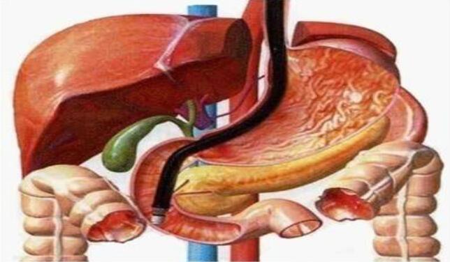 适合胆囊癌的运动有哪些