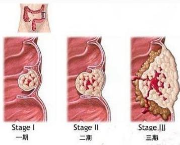 大肠癌鉴定办法有哪些
