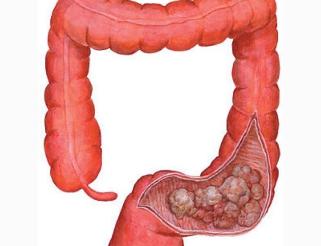 中医诊断大肠癌的办法有哪些