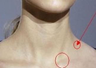 女淋巴癌早期症状图片