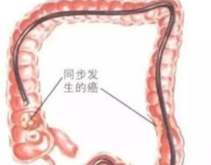 运动能治好早期大肠癌吗