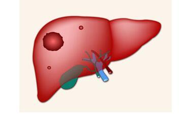 晚期胆囊癌肝转移怎么办