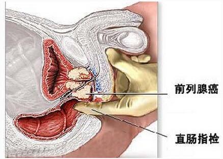 前列腺癌的危害有哪些呢