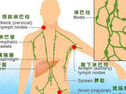 淋巴癌的9种常见分型