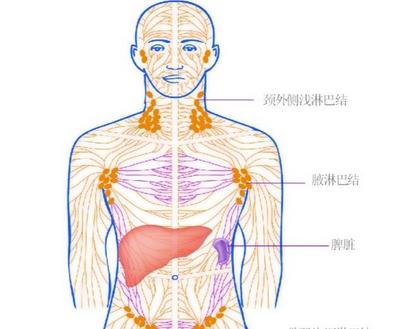如何防止淋巴癌的再次发作