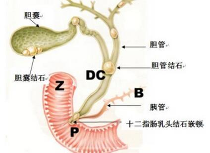 胆囊癌感染肝传染么