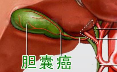 胆囊癌晚期有黄疸传染吗
