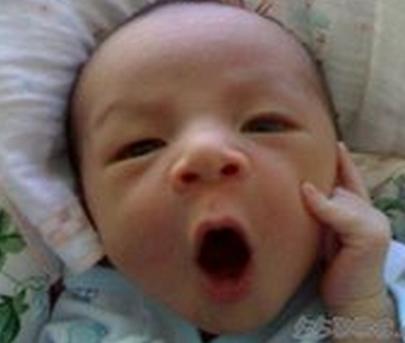 孕期甲减会遗传给宝宝吗