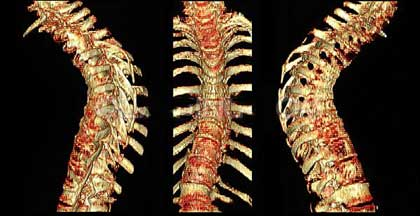图说健康:吃得太饱带来疾病