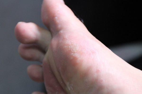 患上脚气一般会出现哪些症状