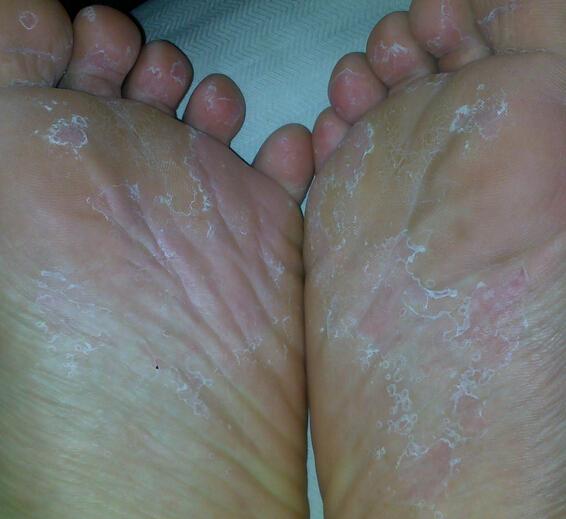 脚气的症状图片主要有哪些