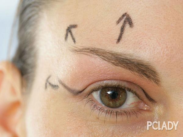 开眼角一定会留疤痕吗?