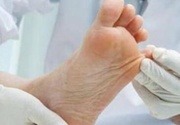 足癣的症状表现是什么