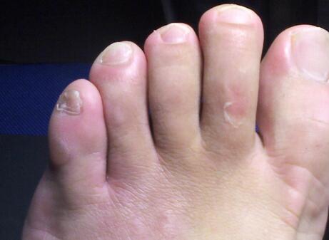 足癣具体的症状有哪些