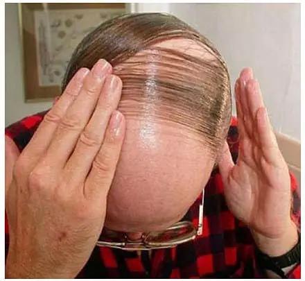 秃顶的现象会传染吗
