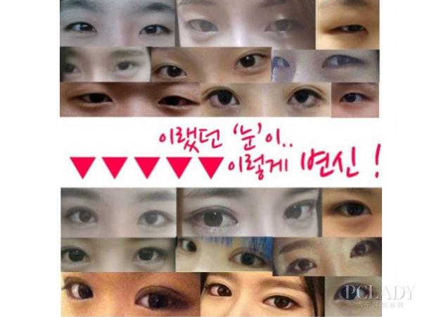 韩国欧巴美女多 常做整形术有哪些?