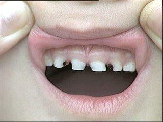 牙齿发黑是龋齿的症状吗