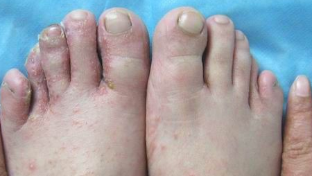 足癣疾病有哪些危害