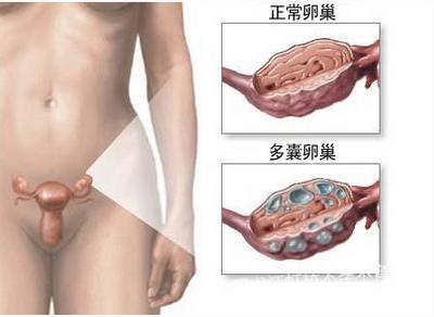 多囊卵巢综合征患者日常要注意什么