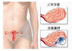 卵巢囊肿侧卧疼痛