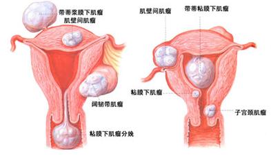 中医院妇科子宫肌瘤治疗方法