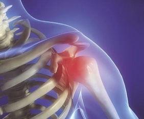 肩周炎的运动方法