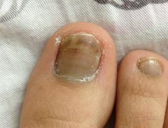 灰指甲发作的先兆有哪些