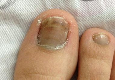灰指甲复发的先兆有哪些