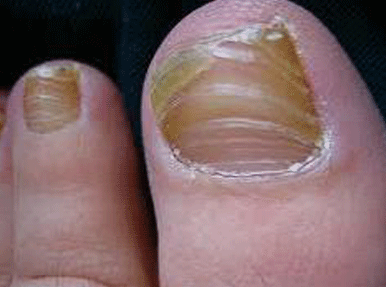 灰指甲的食疗方法