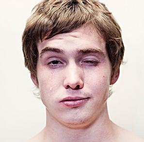 面肌痉挛症状分类有哪些