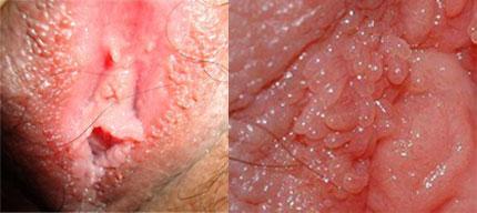 复发女性尖锐湿疣治疗