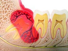 智齿冠周炎会有什么症状啊