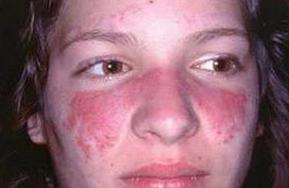 患上了红斑狼疮严重吗