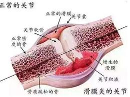 治疗早泄_膝关节滑膜炎如何治疗呢-1 - 飞华健康网