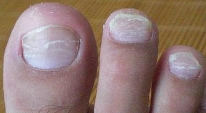 灰指甲早期食物有哪些