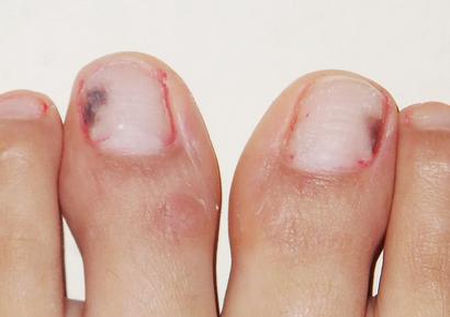 灰指甲前期的食疗方法有哪些