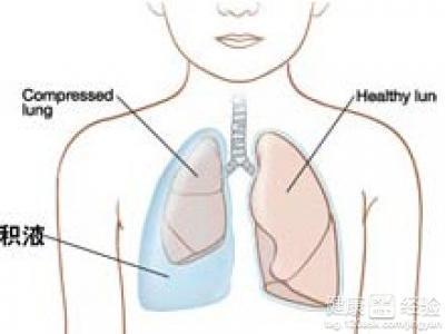 胎儿胸腔积液治疗