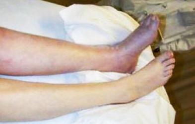 下肢静脉血栓